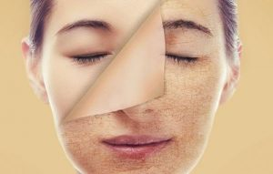 Tẩy da chết thường xuyên sẽ giúp lấy đi các tế bào da khô ráp, tái tạo tế bào mới