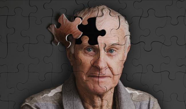 Bệnh nhân Alzheimer bị mất dần trí nhớ và khả năng ghi nhớ