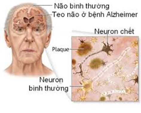 Alzheimer là bệnh lý teo não ở người cao tuổi