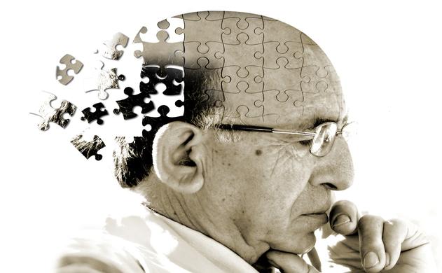 Dấu hiệu và triệu chứng bệnh Alzheimer