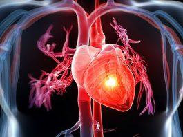 Thông tin cần biết về bệnh nhồi máu cơ tim