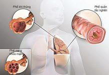 Triệu chứng viêm phổi, chẩn đoán và cách điều trị